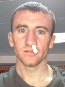 Belfast boxer Paddy Barnes to miss Euro final through a broken nose