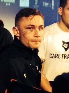 World champion Karl Frampton sports his bruises after a tough fight with Martinez