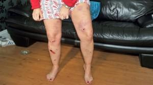 Roberta Toan shows oft leg injuries after LVF bomb attack