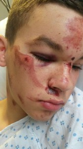 Jordan Elsie was brutally assaulted following disorder in east Belfast