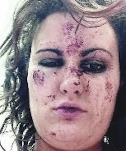 The injuries Gemma Hasson sustained in brutal sectarian attack